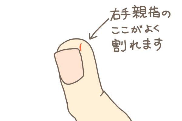 手荒れで指先が割れる